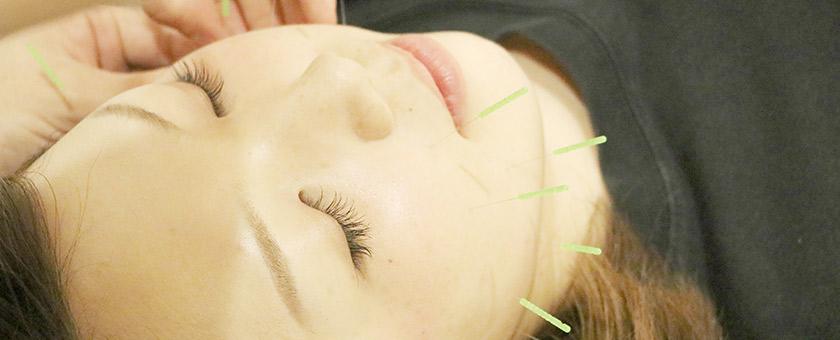 美容鍼の特徴